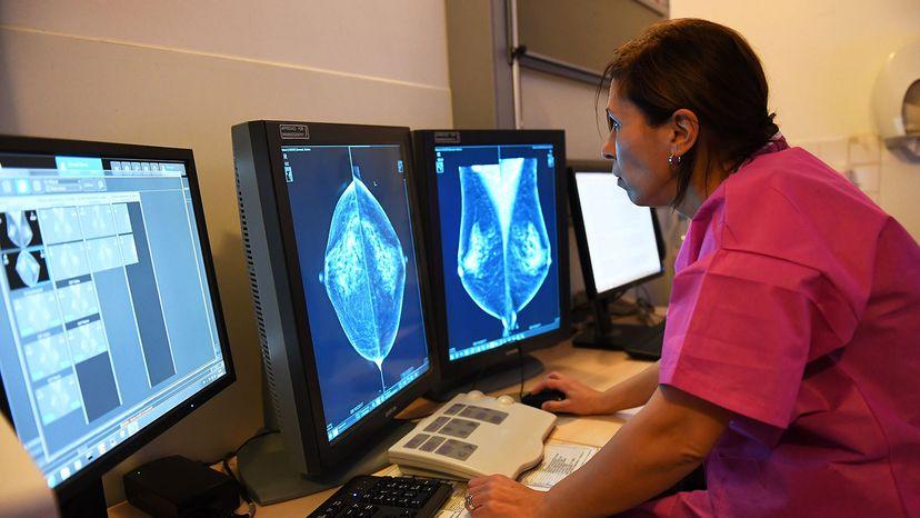 Dr. Rim Villard, mammogram