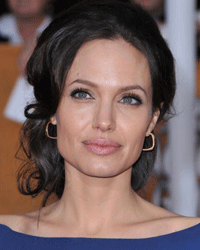 Angelina Jolie's lips are the gold standard for many women getting plastic surgery.