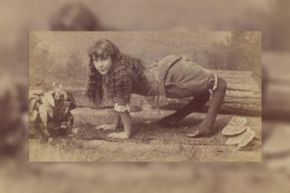 Because of her condition, Ella Harper preferred to walk on her hands and feet.