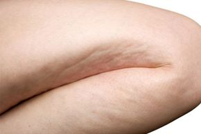 The best way to reduce the appearance of cellulite is through regular exercise and a healthy diet. See more pictures of skin problems.