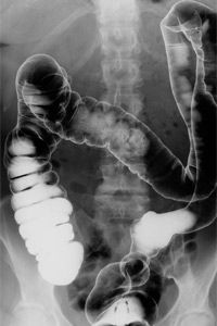 Welcome to your gut, home to as many as 30,000 different species of bacteria.