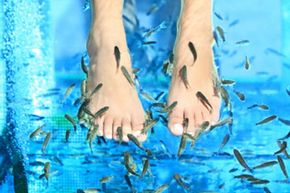 It takes about 150 fish to clean the dead skin from one spa customer.