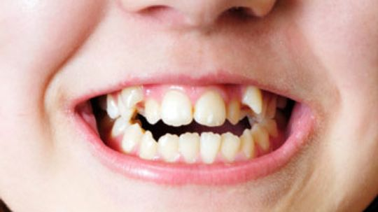 How to Fix Overlapped Teeth