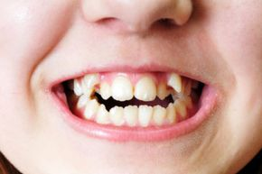 Fixing overlapped teeth can be a life-changer and many patients choose to undergo the procedures despite the expense.