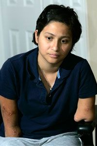 Claudia Mejia contracted flesh-eating bacteria before giving birth to her son. Mejia underwent amputation surgeries to save her life.