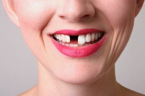 Flippers keep you from having to walk around with a visible gap in your teeth.