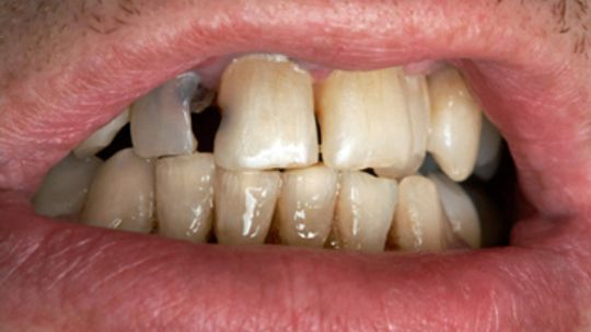 Can fluoride make your teeth yellow?
