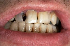 Is fluoride doing more harm than good?
