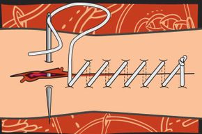 To sew up a wound, pierce the skin at a 90 degree angle, starting at the center of the wound and stitch outward.