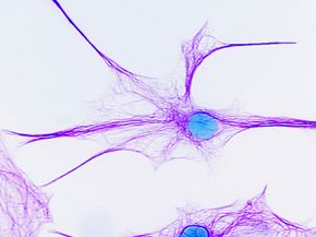 Brain cells are one thing an fMRI can't hone in on.
