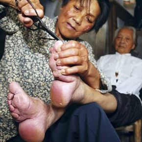 A 105-year-old woman with bound feet, has her toenails cut by her daughter in central China's Hubei province June 28, 2006. Note the broken instep and the toes curved under the sole.