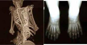 Some clinical features of FOP: extra bone and malformed big toes