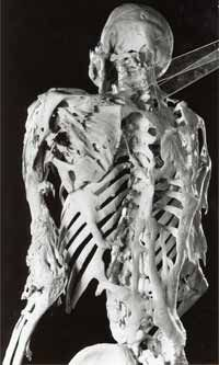 The skeleton of Harry Eastlack, a man with FOP, from the collections of the Mütter Museum, College of Physicians of Philadelphia