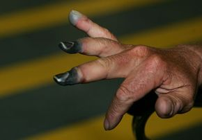 New Zealand climber Mark Inglis shows his badly frostbitten fingers as he arrives at Auckland International airport after returning from Kathmandu.
