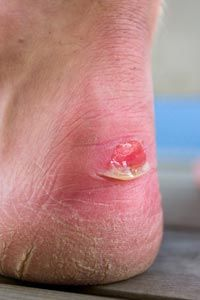 Skin Problems Image Gallery Friction blisters often occur after exercise. See more pictures of skin problems.