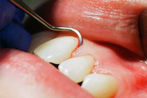 Periodontal probes are marked with grooves that measure the deepness of pockets between the gums and teeth. Dentists slide the probe gently into the gum line and note where the tip stops to determine how much gum disease has progressed.