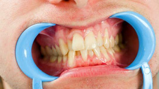 Gum Surgery