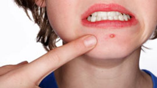 Can food allergies cause acne?