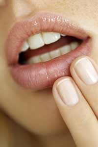 Cold sores can caused by stress and colds. See more personal hygiene pictures.