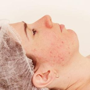 There are many treatments available to help reduce the appearance of acne scars. See more pictures of skin problems.