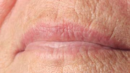How to Get Rid of Lip Lines