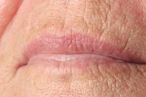 Healthy Aging Image Gallery Lip lines are a typical sign of aging, especially among smokers. See more healthy aging pictures.