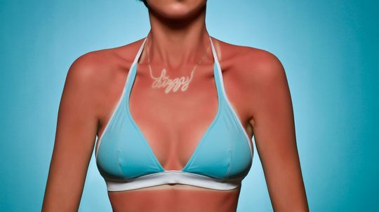 How Sunburns and Sun Tans Work