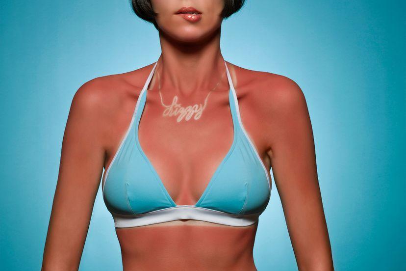 Portrait of woman with sunburn Ralf Nau/Stone/Getty Images
