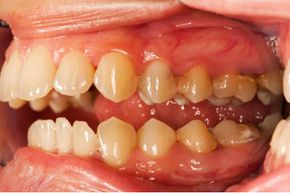 If you have gingivitis, your saliva contains bacteria that can be transferred to other people.