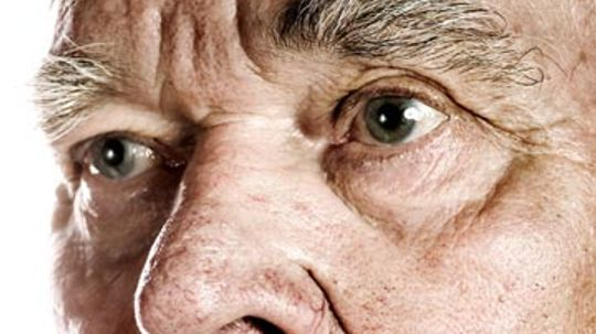 At a Glance: Broken Capillaries