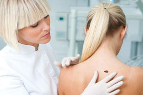 If you've got a skin condition that's causing concern, don't hesitate to consult a dermatologist.