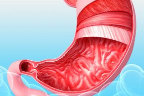There is a coating of mucus lining your gastrointestinal tract right now. Don't worry -- it's supposed to be there.