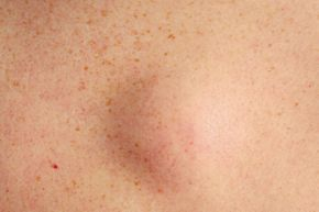 Most fatty deposits appear as soft lumps just beneath the skin.