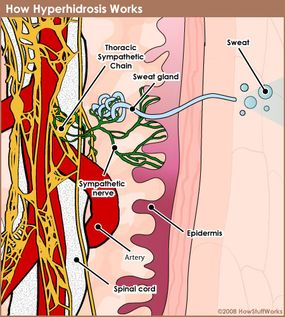 The nervous system causes sweat glands to work overtime for someone with hyperhidrosis.