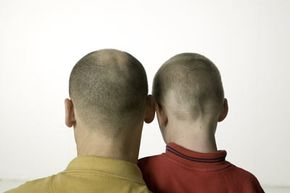Baldness is not caused by vitamin deficiencies, bad circulation or wearing hats.