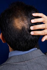 Hair transplantation is the No. 1 cosmetic procedure performed on men today.