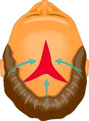 In scalp reduction surgery, a segment of bald scalp is actually removed and the surrounding skin pulled together and sutured.