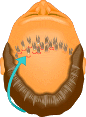 In hair transplantation, pieces of hair-bearing scalp are taken from the sides and back of the head and re-planted in holes in the bald area.