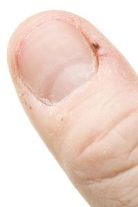 A hangnail can be a doorway to infection. See more pictures of personal hygiene practices.
