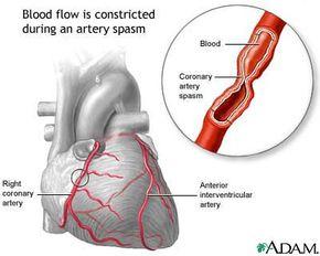 A coronary artery spasm can slow or stop blood flow through an artery.