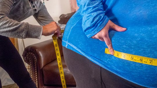 Enough With the Term 'Healthy Obesity,' Says Researcher