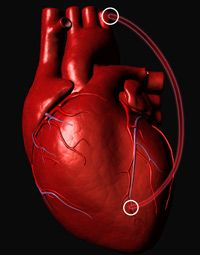 Pictured is a digital representation of what your heart might look like after bypass surgery. This surgery is bypassing a coronary artery.