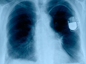An artificial pacemaker mimics the electrical impulses normally created by the SA node.