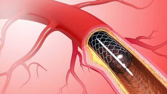 Heart Stents Fail to Alleviate Chest Pain, New Study Finds