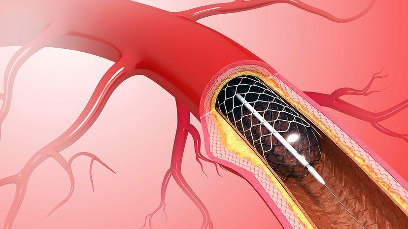 heart stent angioplasty