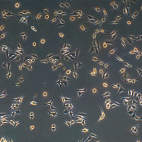 HeLa cells are incredibly hardy, which makes them very useful for medical research.