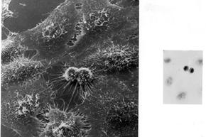 HeLa cells dividing under electron microscopy.