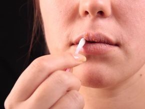 Cold sores, also known as fever blisters, are caused by herpes simplex virus 1.
