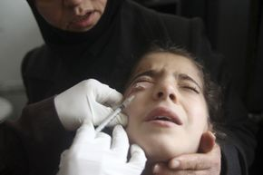 A Syrian child showing symptoms of leishmaniasis has her blood drawn in 2013. Scientist and doctor Jacinto Convit dedicated his life to researching infectious disease, particularly leprosy and leishmaniasis.