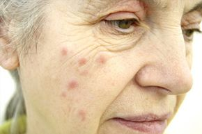 What could have caused the hives on this woman's face? See more pictures of skin problems.
